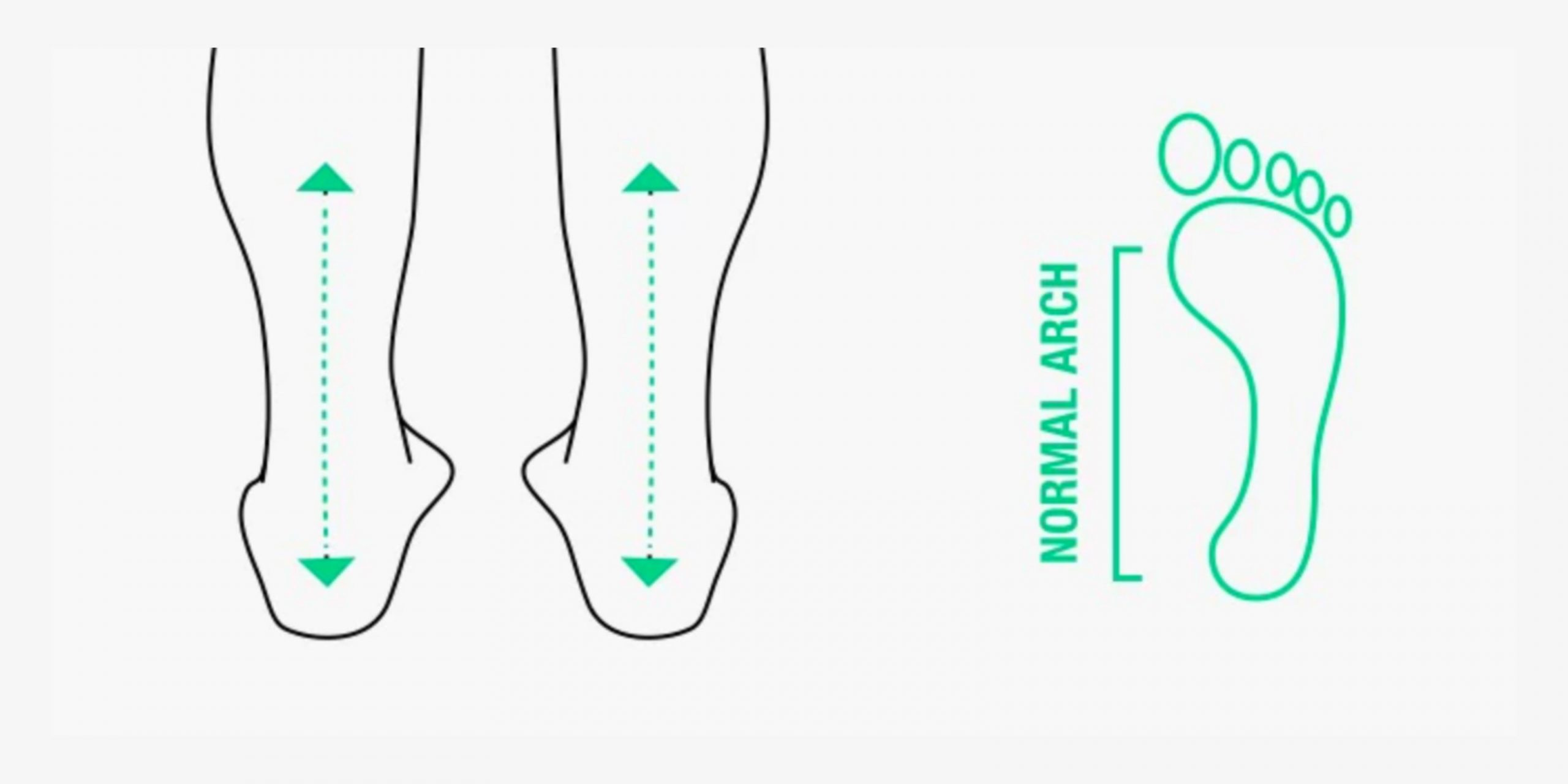 What's normal pronation